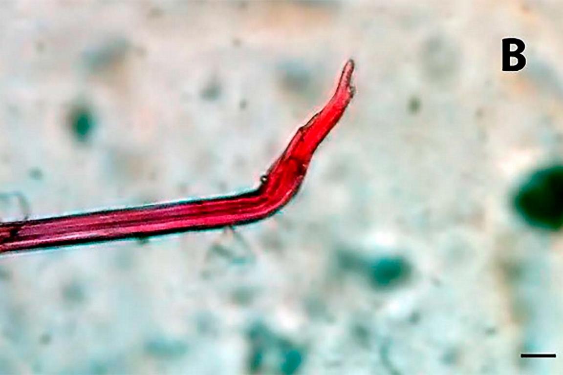 microplasticoB